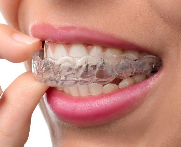 Invisalign ® – Aparelho Dentário Invisível